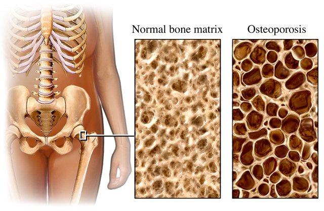 Will Calcium reverse Osteoporosis?